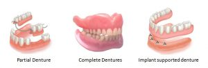 photo denture types